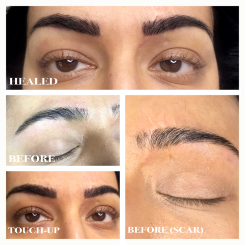 Microblading Scar Touch UP